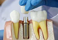 Doctor showing dental implant